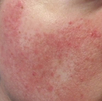 Rosacea Subtype 2 – Bumps and Pimples (known as papulopustular rosacea) - Rosy JulieBC