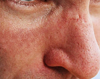 Rosacea Subtype 3 – Skin Thickening (known as rhinophema)