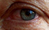 Rosacea Subtype 4 – Eye Irritation (known as ocular rosacea)
