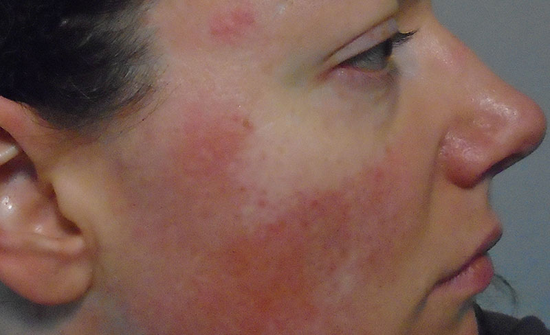 What is Rosacea? Rosacea Symptoms, Triggers & Causes [With Pictures] - Rosy JulieBC
